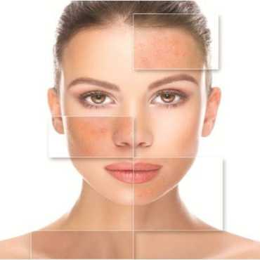 skin care περιποίηση προσώπου
